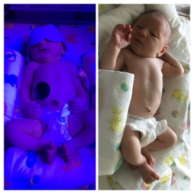 Samson in the Hospital with Jaundice